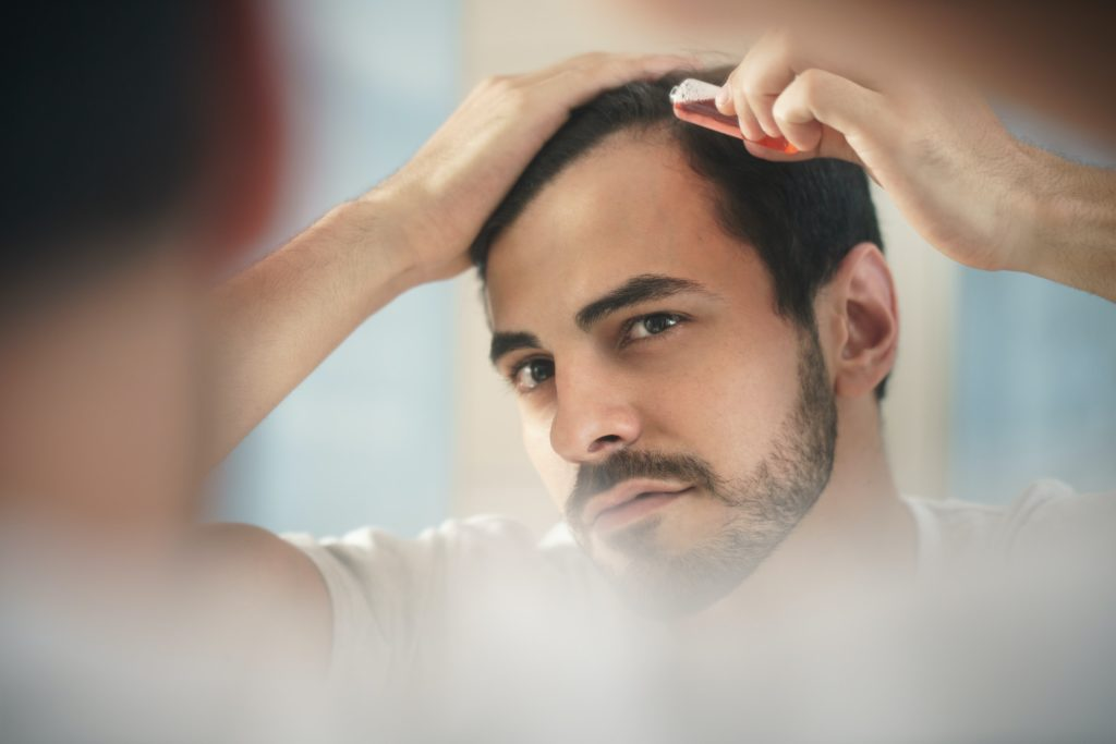 Man with low progesterone symptoms including balding